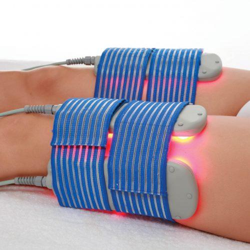 Conosci i vantaggi della lipolisi laser